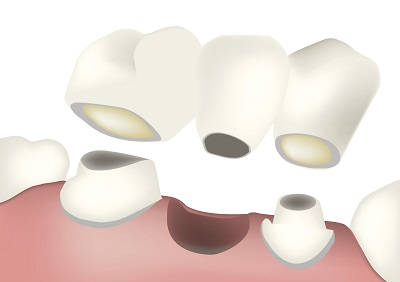 A dental bridge is an affordable solution to tooth loss, but inferior to a dental implant.