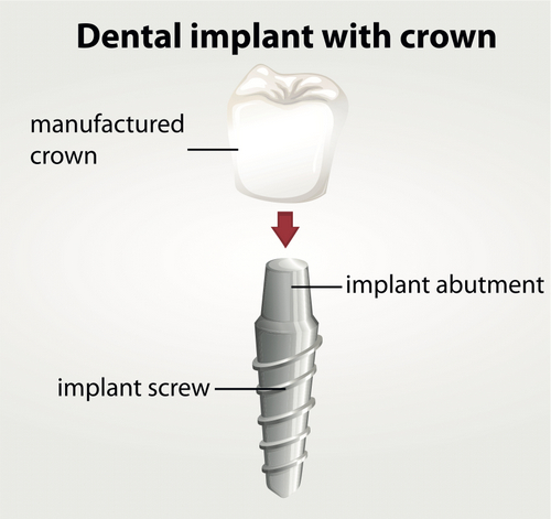 A dental implant consists of a post screw, abutment, and restoration such as a manufactured dental crown.