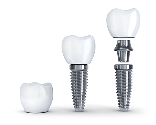 The implant post (or screw) is surgically placed into the mouth, and then the abutment and restoration is attached to it.