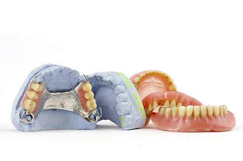 A dental denture is an affordable solution to tooth loss, but inferior to dental implants.