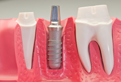 A dental implant is the ideal solution to tooth loss.