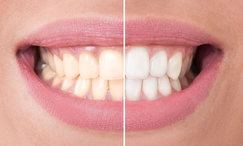 Reasons to Consider Dental Whitening