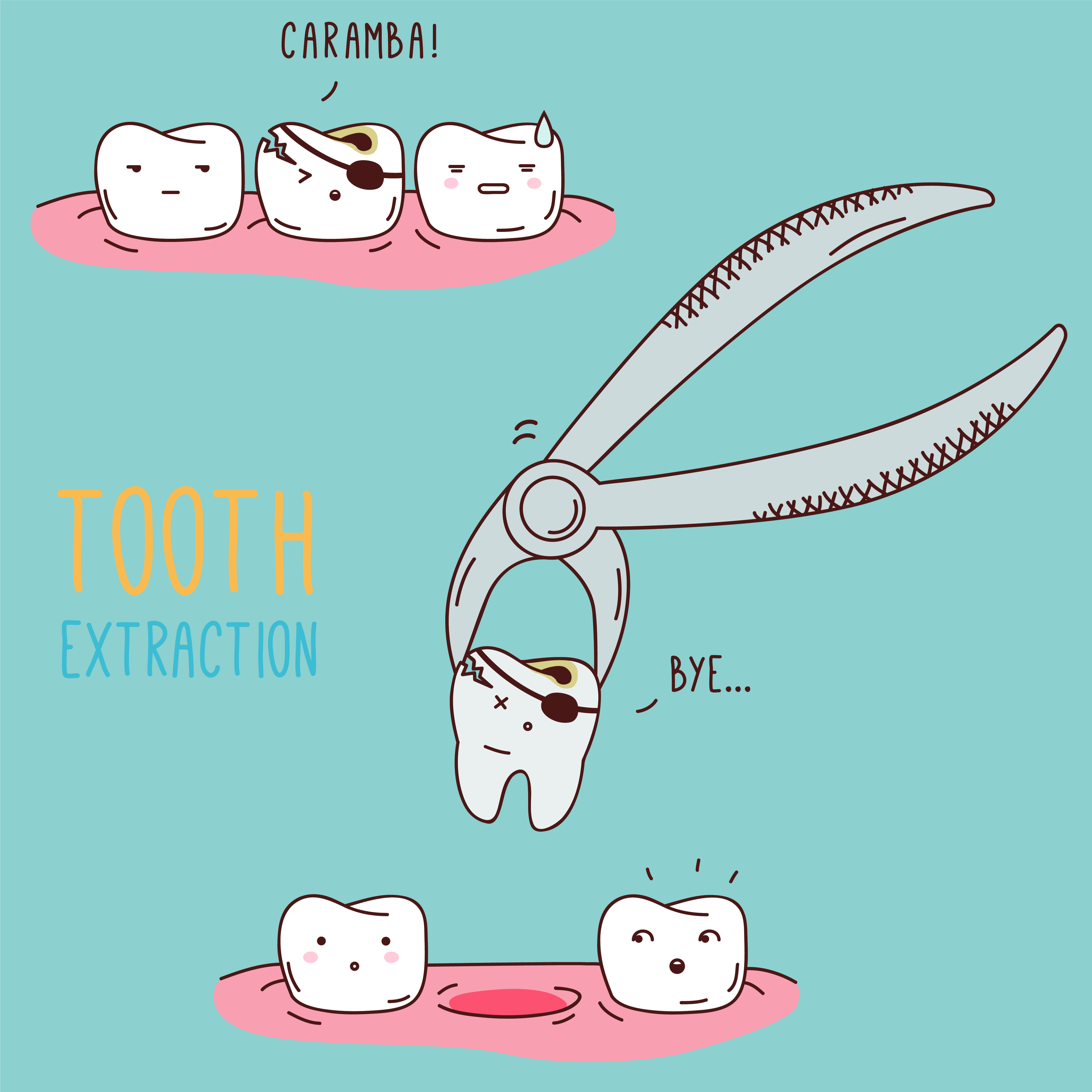 Comic illustration of a tooth extraction from Beautiful Smiles in Woodland, CA